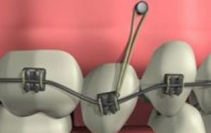 LES MINI-VIS EN ORTHODONTIE